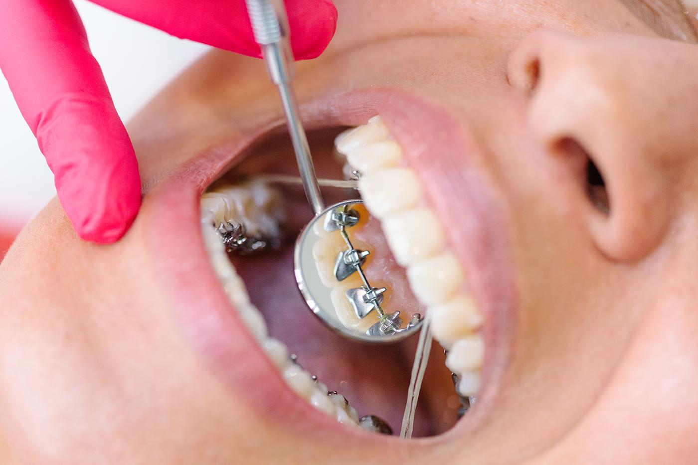 orthodontist emergency