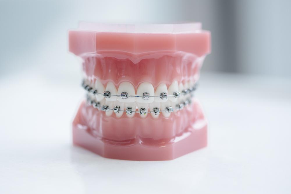 Treatment-traditional-brackets Orthodontist Den Haag De traditionele slotjesbeugel Smiledesigner Orthodontist Den Haag