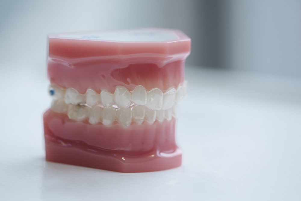 Invisalign-SmileDesigner-Orthodontist-The Hague