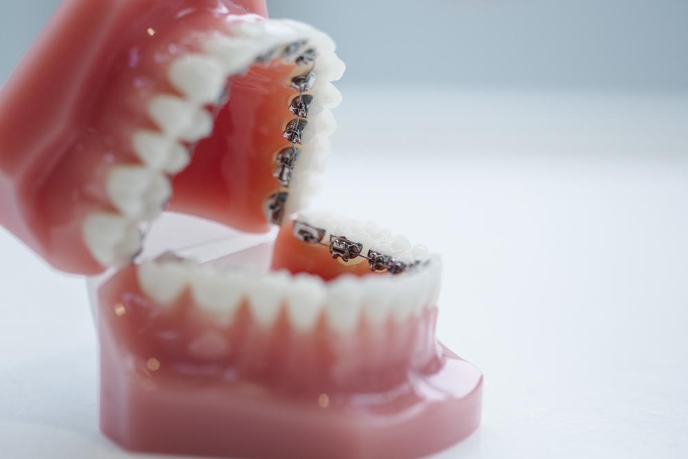 De linguale beugel SmileDesigner Orthodontist Den Haag