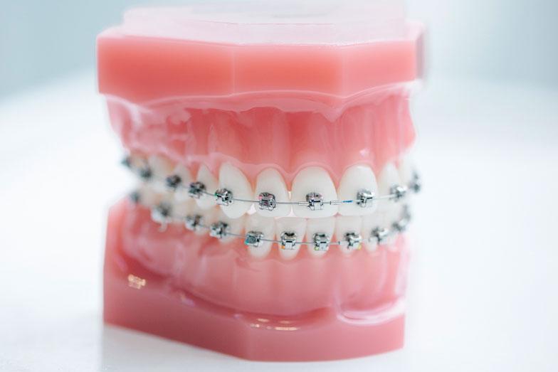 Traditional-brackets-SmileDesigner-Orthodontist-Den-Haag