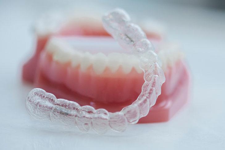 Invisalign-SmileDesigner-Orthodontist-Den-Haag