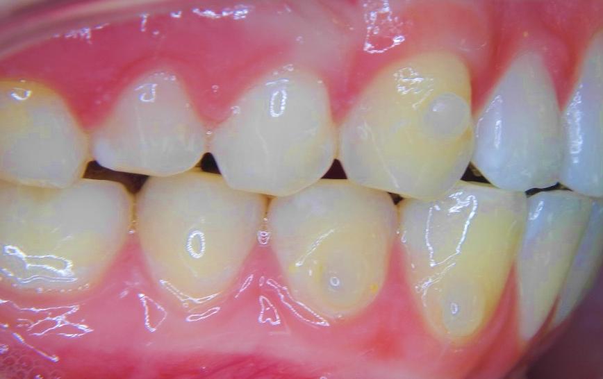 Lingual Brackets Orthodontist Den Haag SmileDesigner