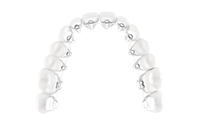 The lingual treatment; the brace that is placed on the back of your teeth