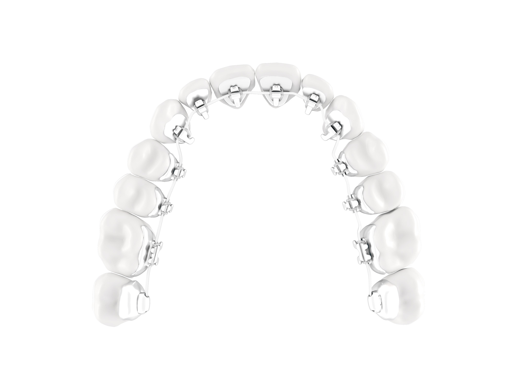 Lingual-braces-SmileDesigner-The Hague Orthdontist