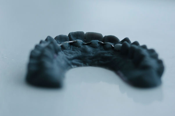 Aftercare-SmileDesigner-Orthodontist-The Hague