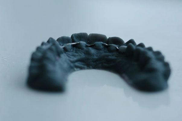 Nacontrole-SmileDesigner-Orthodontist-Den-Haag