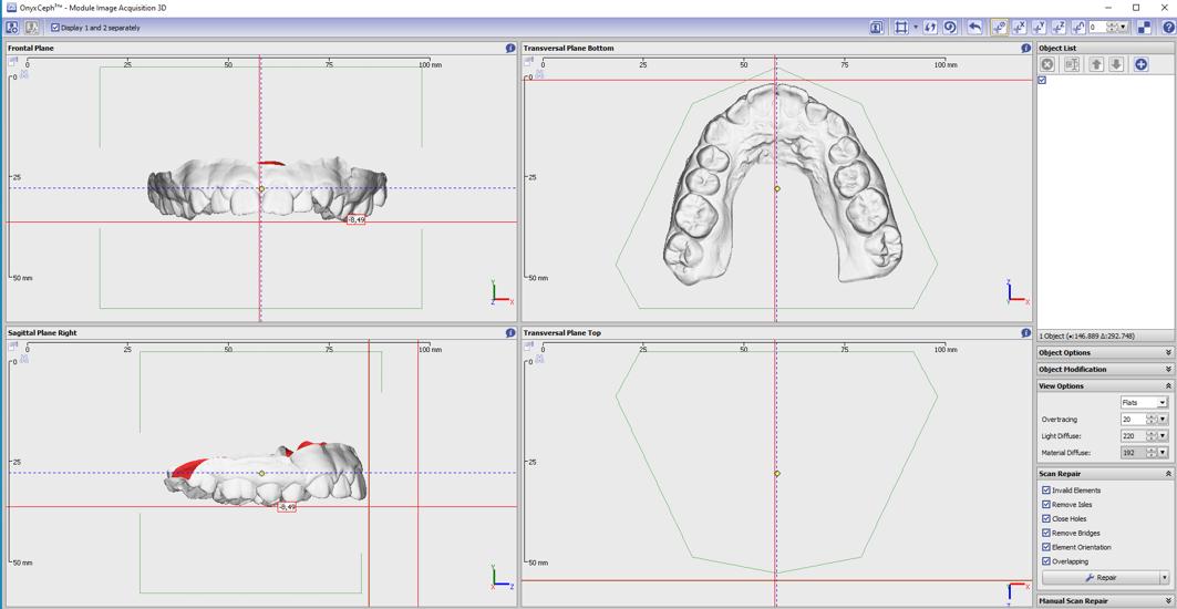 Indirect Bonding 3D-Model-From-Scan01