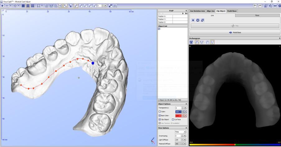 Indirect Bonding  3D-Model-From-Scan02